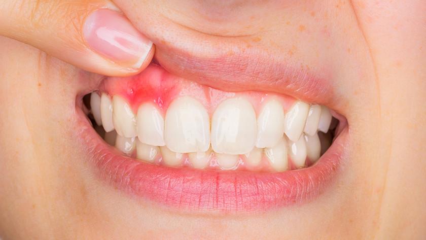 Parodontitis DPSI